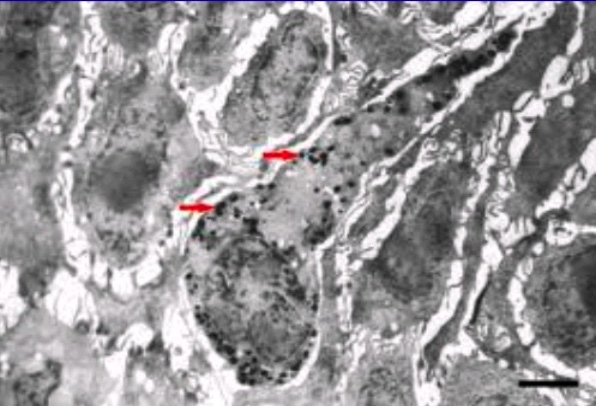 Electron photomicrograph of a melanocyte with red arrows indicating packets of melanin pigment.