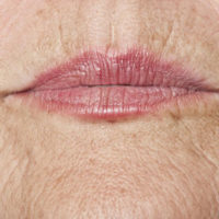 An aging woman's face
