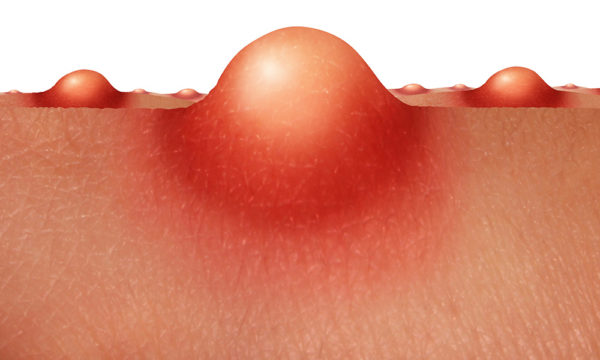 Bumps on the skin